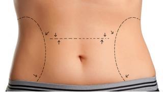 Давай стройнеть! Коррекция фигуры в медицинском центре «Медицина»! Криолиполиз или инъекции липолитика для похудения!